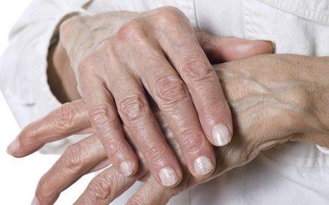 tinktúra ízületi fájdalmak kezelésére